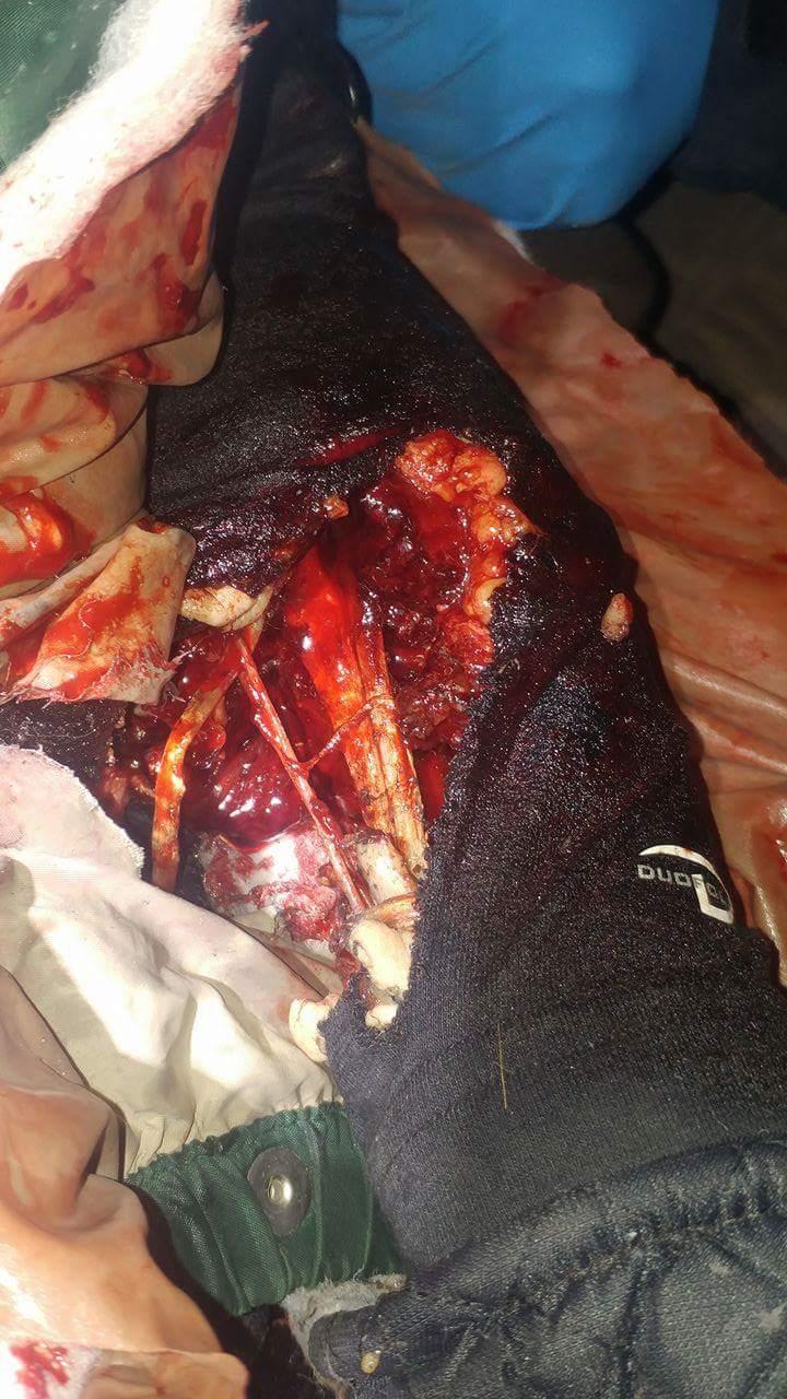 Wilansky injury